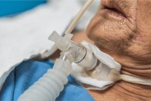 riabilitazione tracheostomia